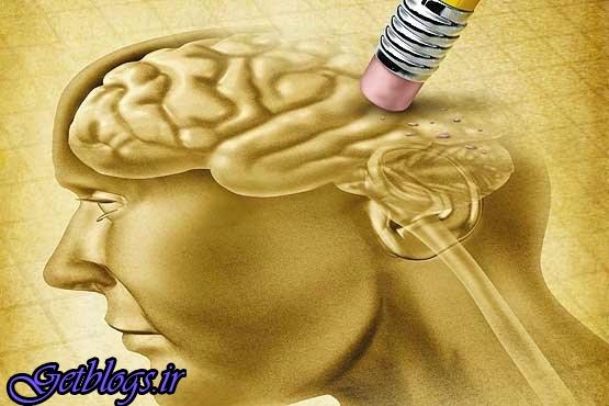 میزان افسردگی در زنان زیاد از مردان است ، یک درصد جمعیت کشور آلزایمر دارند