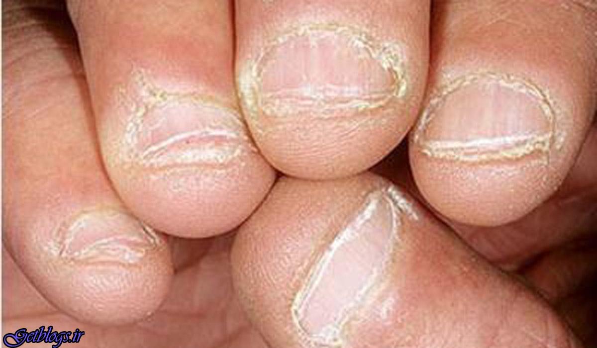 مصرف زیاد ویتامین باعث پوسته شدن اطراف ناخن می شود