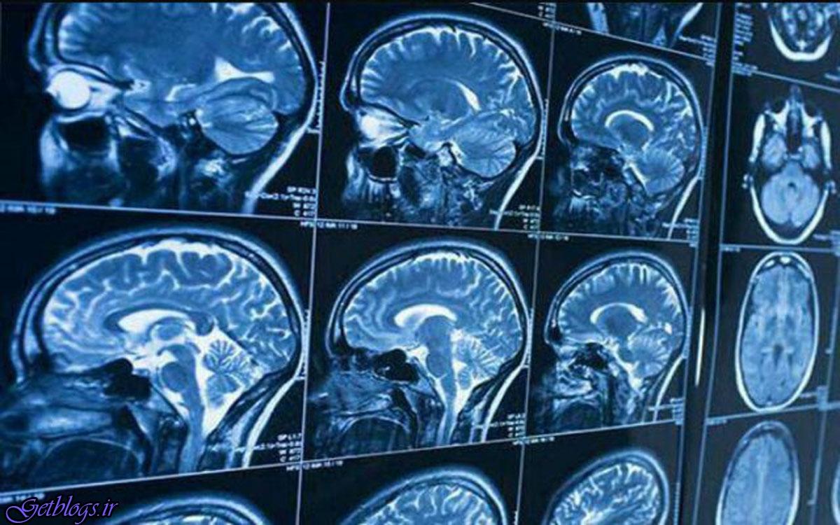 شناسایی مکانیسمی جهت تنظیم مایع مغزی نخاعی