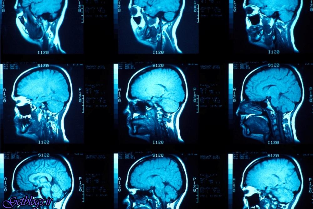 آموختن علم فیزیک مناطق جدیدی از مغز را فعال می کند