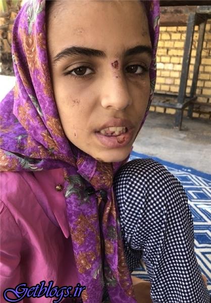 عکس) + از شکستن دندان با چکش تا بستن لبهای دختر فرزند ۱۲ ساله با چسب حراراتی (